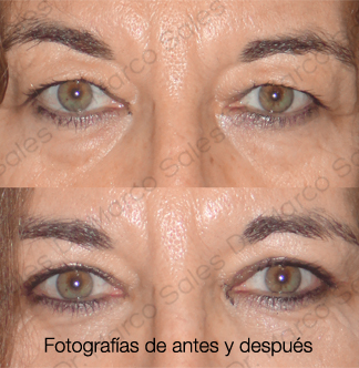 blefaroplastia-completa-pagina-ayd