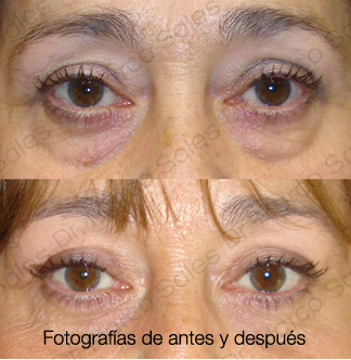 blefaroplastia-inferior-pagina-ayd