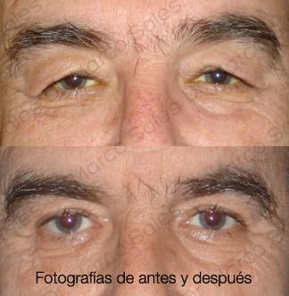 blefaroplastia-superior-pagina-ayd