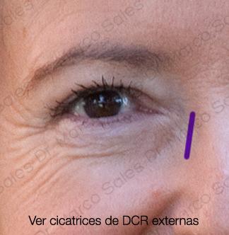 cicatrices-dcr-ayd
