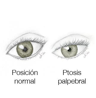 Esquema ptosis