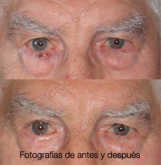 Tumor AyD 1