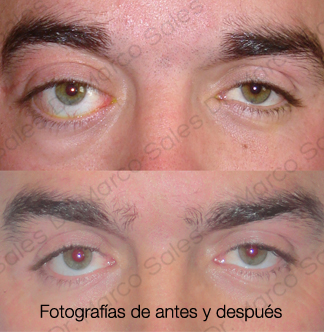 tumores-orbitarios-ayd