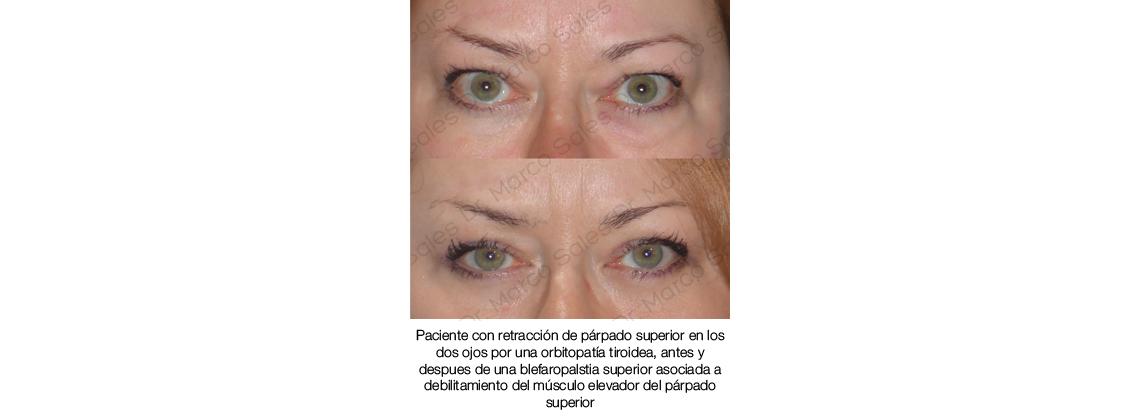 Antes y después Blefaroplastia y retraccion palpebral superior