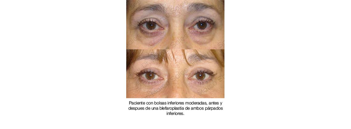 Antes y después Blefaroplastia inferior 01