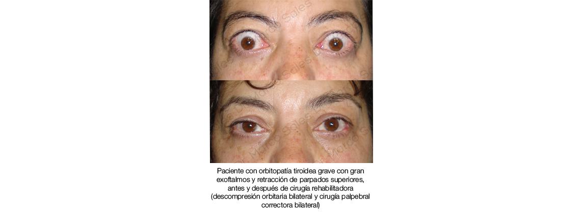 Descompresion y retraccion tiroidea 01