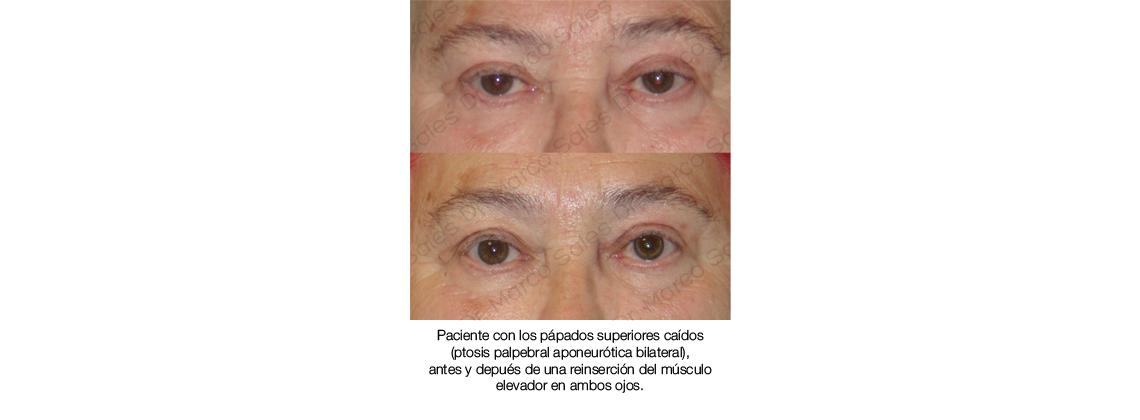 antes y despues Ptosis palpebral aponeurotica 01
