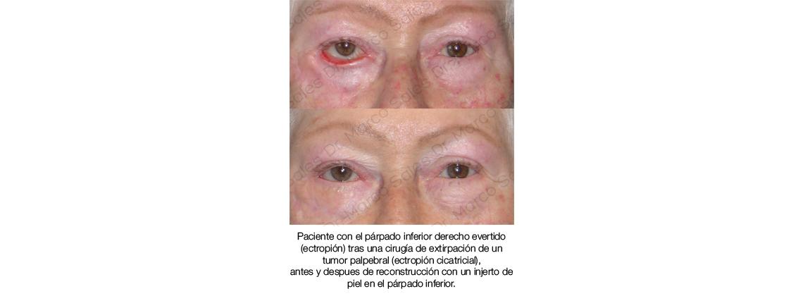 antes y despues ectropion cicatricial 01