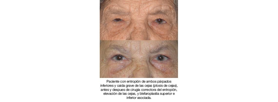 antes y despues entropion cejaplastia y blefaroplastia completa 01