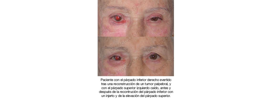 antes y despues ptosis y ectropion cicatricial 01