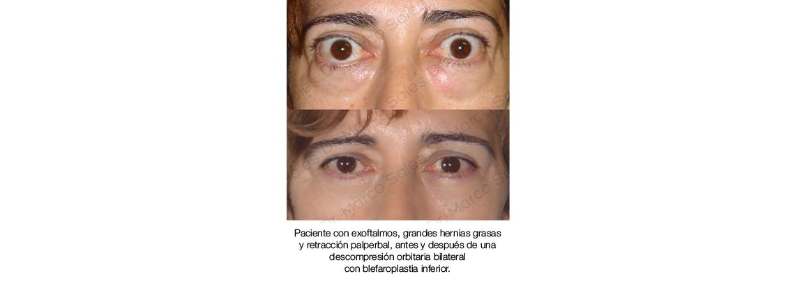 Descompresion orbitaria y blefaroplastia 21