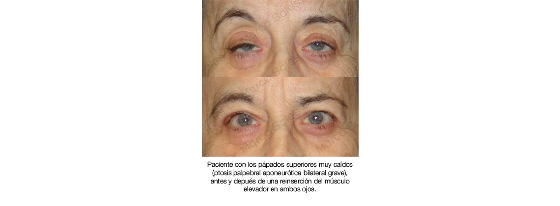 antes y despues Ptosis palpebral aponeurotica 02
