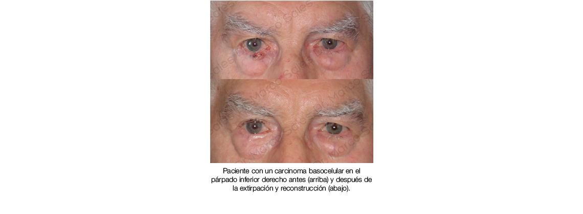 Tumor palpebral reconstruction 02