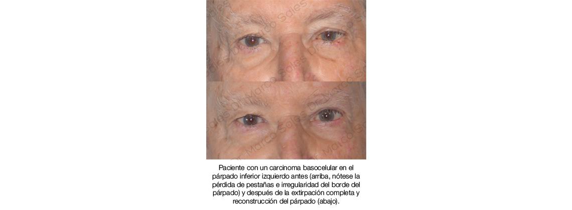 Tumor palpebral basocelular reconstruction 03