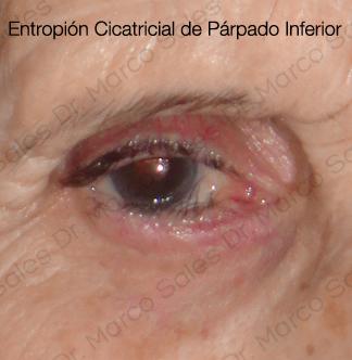 entropion-cicatricial-pi-c1