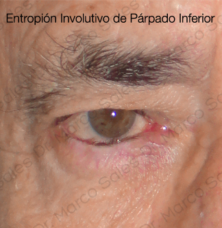 entropion-involutivo-pi-c2