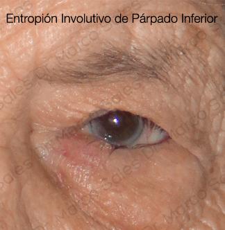 entropion-involutivo-pi-c4