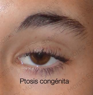 Ptosis C2 2