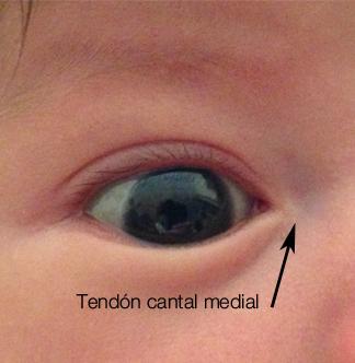 tendon-cantal-medial-2