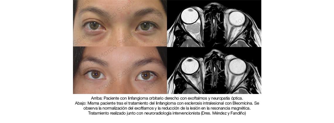 ayd-linfangioma-bleomicina