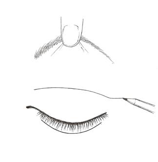 blefaroplastia-superior-c1