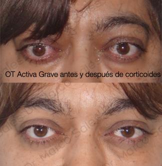 ot-activa-grave-ayd-gc