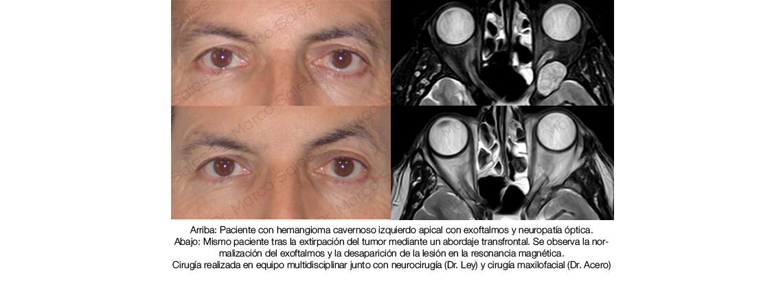 tumor-apex-multidisciplinar