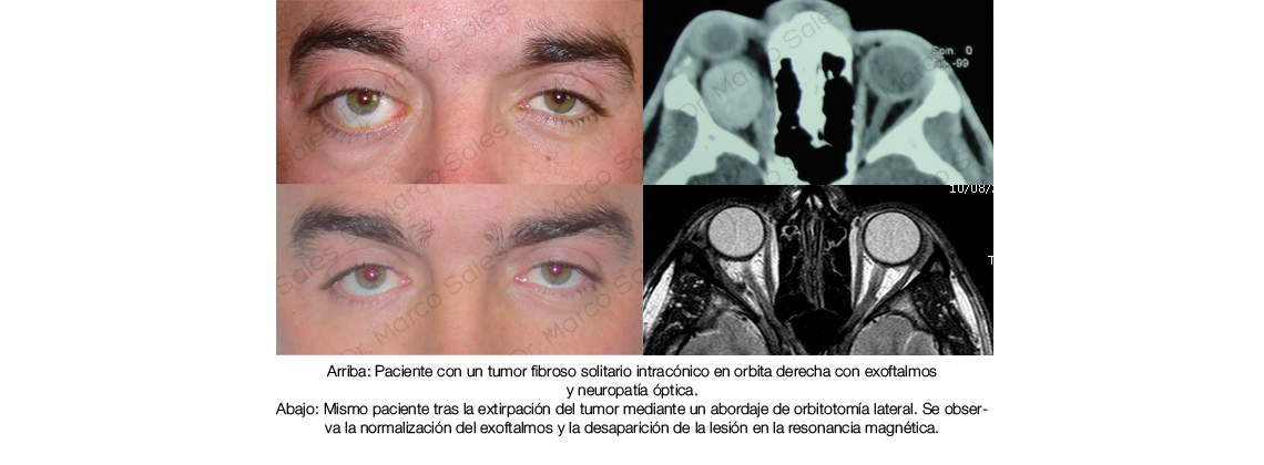 tumor-fibroso-solitario-grande