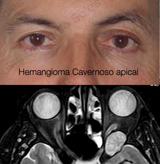tumores-orbitarios-hc-apex